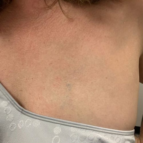 Laser Tattoo Removal Chest After