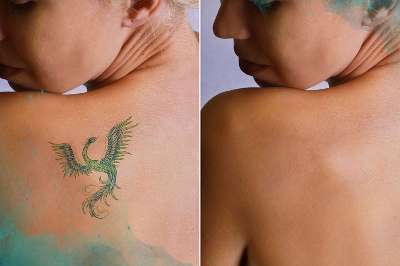 woman shoulder tattoo removed before and after
