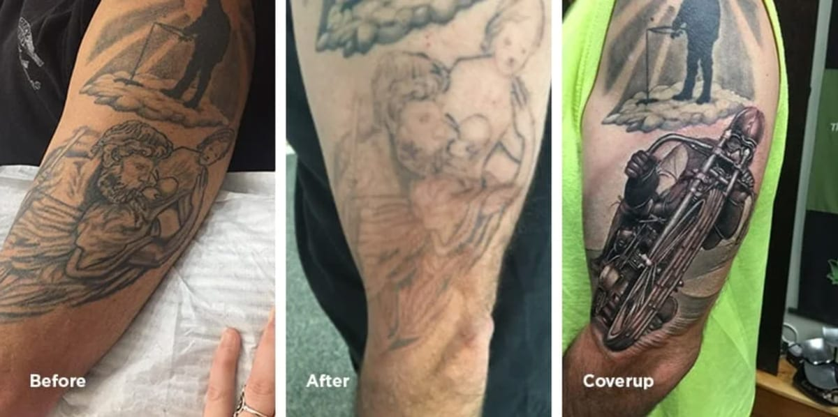 sleeve tattoo removal before and after