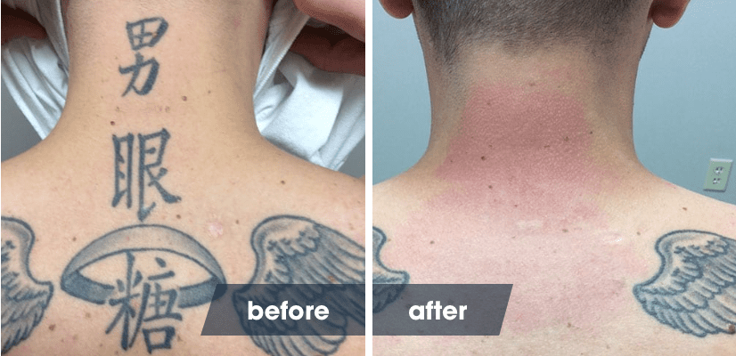 Healing Tattoo Pictures