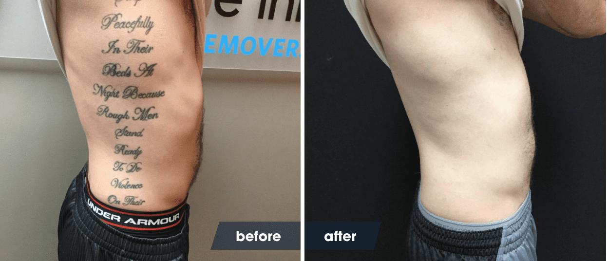 Script Tattoo Removal Healing Photos