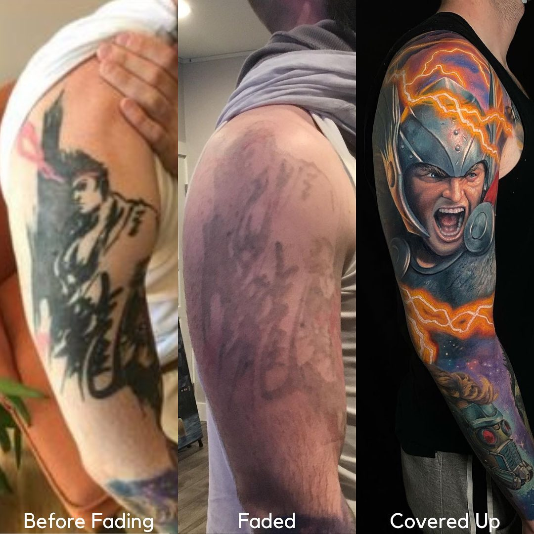cover up tattoo after laser removal